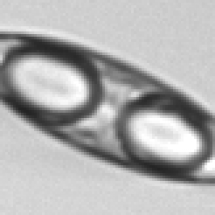 Pennate diatom single